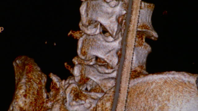 ecu ct scan of human spinal cord and ileum / vermont, usa - ileum stock videos & royalty-free footage