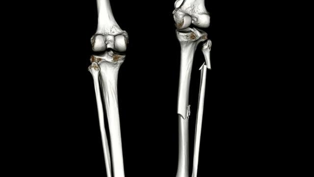 cat scan of tibia fibula - tibia stock videos & royalty-free footage