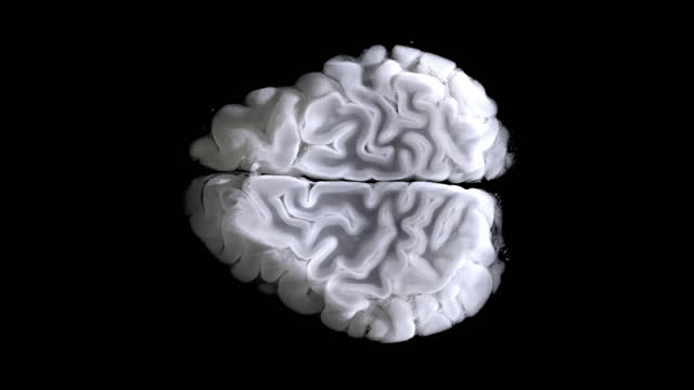 scanned brain scan image by mri scanner on sceen computer. - cerebellum stock videos & royalty-free footage