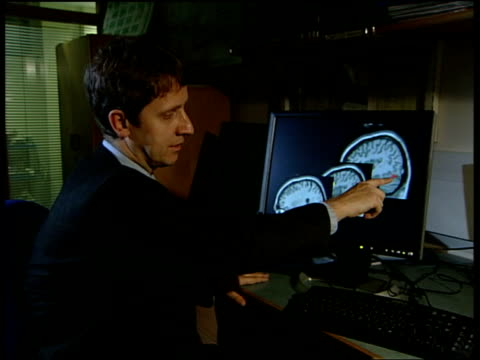 scanned images of brain as hand pointing out details professor jon driver interviewed sot - we identified three areas of brain involved in... - cursor stock videos & royalty-free footage