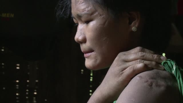 Scars lace across 16 year old Than Than Eis face each line bearing testimony to the abuse she says she suffered at the hands of her adoptive family...