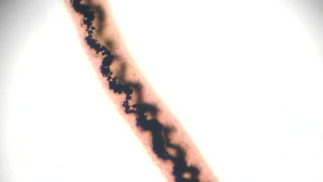 schistosoma japonicum under light microscopy - light micrograph stock videos and b-roll footage