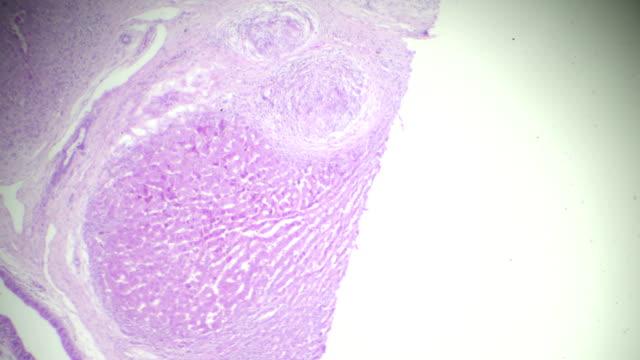 vídeos de stock, filmes e b-roll de amostra de patologia humana de esquistossomose sob microscópio - fígado humano