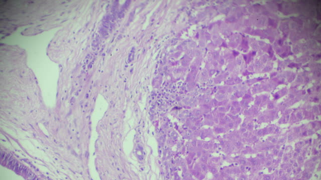 schistosomiasis human pathology sample under microscope - human liver stock videos & royalty-free footage