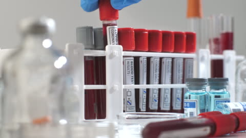 scientific checking blood sample tube in laboratory - positive emotion stock videos & royalty-free footage