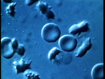 vídeos y material grabado en eventos de stock de 1976 scientific micrograph showing genetic mutation which causes sickle cell anemia ./ united states / audio  - blood