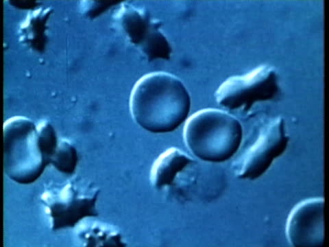1976 scientific micrograph showing genetic mutation which causes sickle cell anemia ./ united states / audio  - micrografia video stock e b–roll