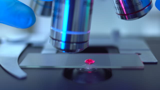 Scientist analyzing blood samples under microscope