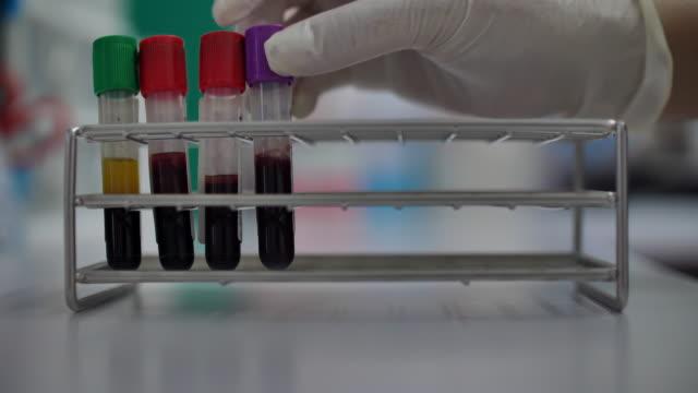 wissenschaftler blutröhre im labor - mint themengebiet stock-videos und b-roll-filmmaterial