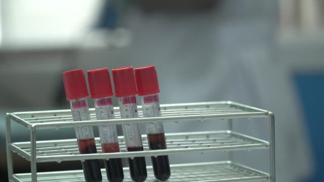 scientist checking blood in laboratory - tube stock videos & royalty-free footage