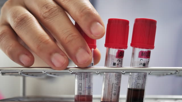scientist checking blood in laboratory - accuracy stock videos & royalty-free footage