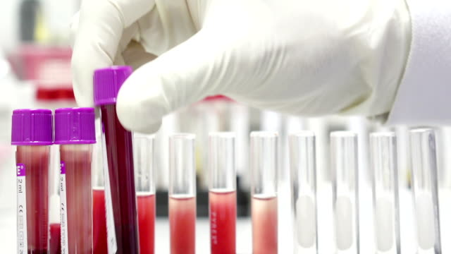scientist checking blood in laboratory - scientific experiment stock videos & royalty-free footage