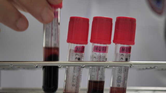 vídeos de stock e filmes b-roll de scientist checking blood in laboratory - investigação genética