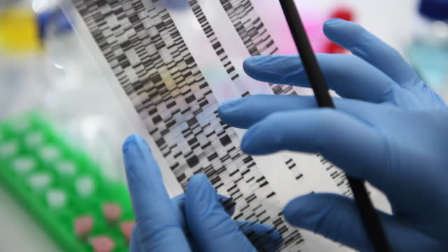 scientist examining a dna autoradiogram showing the genetic make up of a sample in the laboratory - dna video stock e b–roll