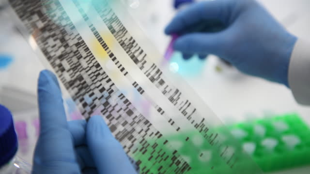 scientist examining a dna autoradiogram showing the genetic make up of a sample in the laboratory - genetic research stock videos & royalty-free footage