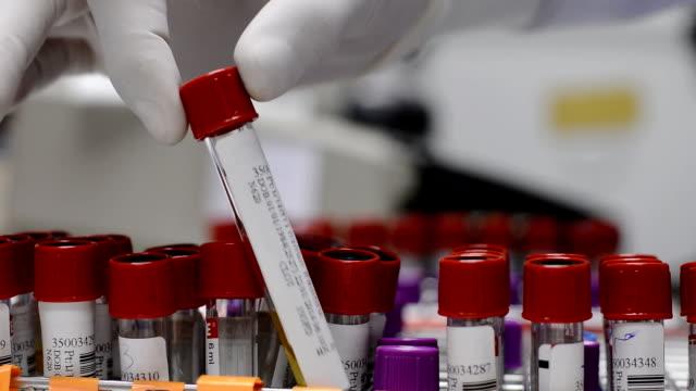 scientist keep a blood tube - medical sample stock videos & royalty-free footage