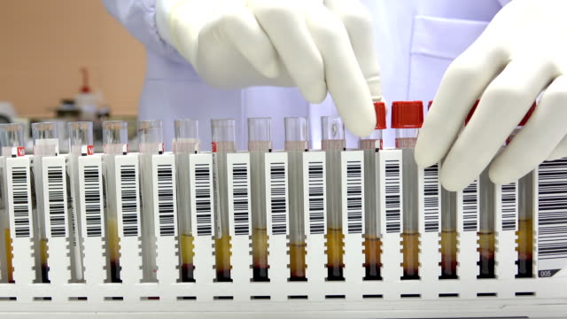 scientist keep blood sample for infectious control