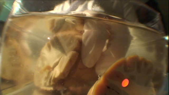 a scientist removes a cross-section of a human brain from a tank of formaldehyde. - human brain stock-videos und b-roll-filmmaterial