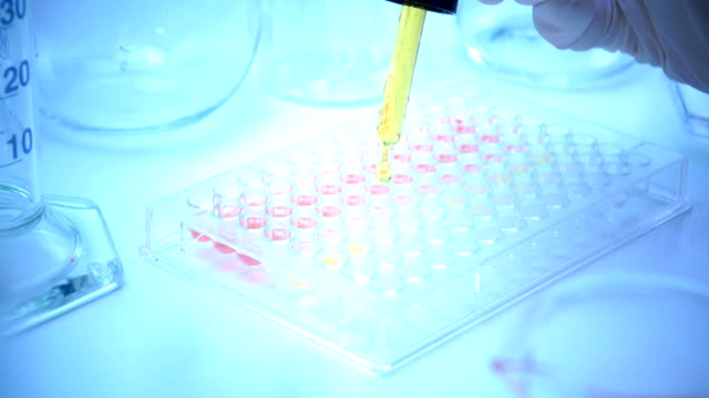 scientist testing in laboratory , dropping chemical solution for diagnosis in human or researching - dna test stock videos and b-roll footage