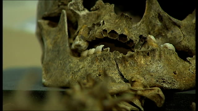 Scientists examine DNA of dead plague sufferers ENGLAND London Museum of London INT Skeletal remains of plague victim laid out on table in laboratory...