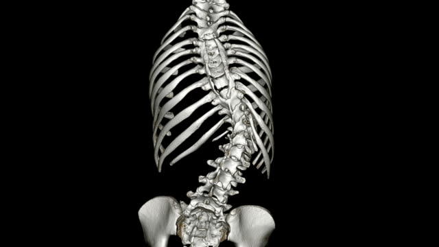 scoliosis - lumbar vertebra stock videos & royalty-free footage