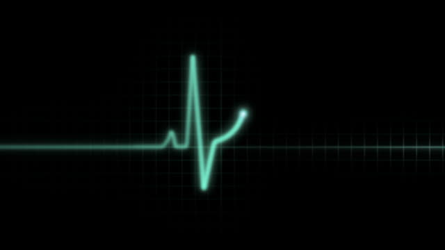 screen oscillatorflat - listening to heartbeat stock videos & royalty-free footage