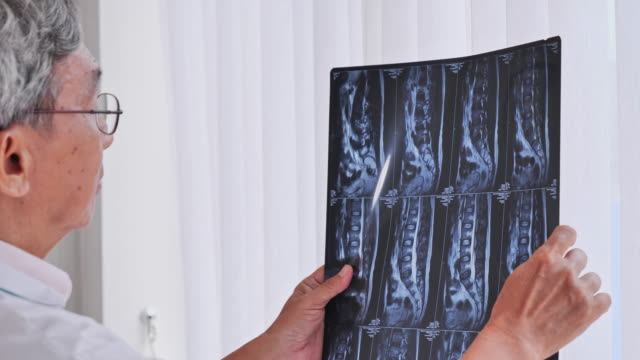 senior asian male doctors are analyzing the therapeutic effects of x-ray film's thorough. - life insurance stock videos & royalty-free footage