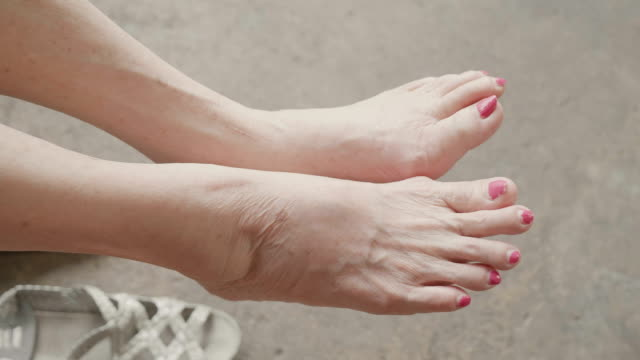 senior asian woman got pain in feet finger joints , gout - tendon stock videos & royalty-free footage
