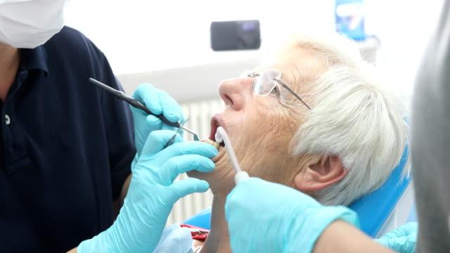 seniorin mit zähnen bei zahnärzten untersucht - zahnpflege stock-videos und b-roll-filmmaterial