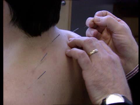 survey lib seq practitioner performing acupuncture on woman's neck and back cf = b0555201 or b0560734 202320 to 202543 mix t26030017 - acupuncture stock videos & royalty-free footage