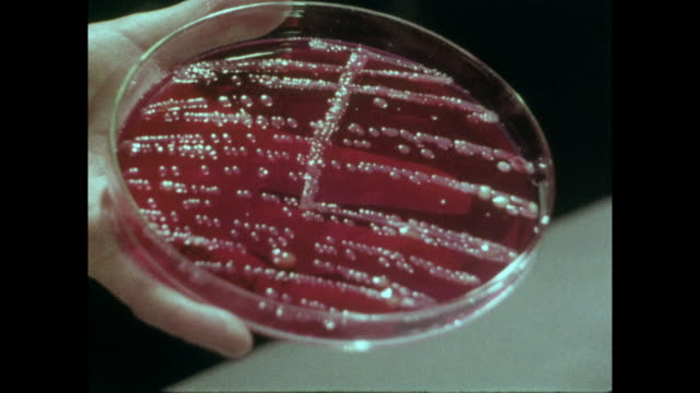 cu sequence of bacterial growth in red petri dish; 1973 - microbiology stock videos & royalty-free footage