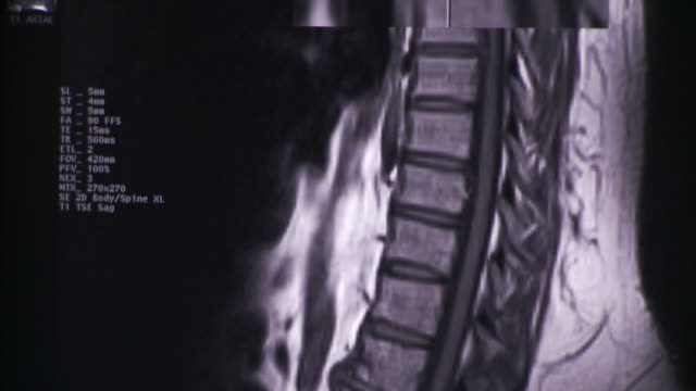 ECU TD Several images of x-ray images of spine on computer screen / South Burlington, Vermont, USA