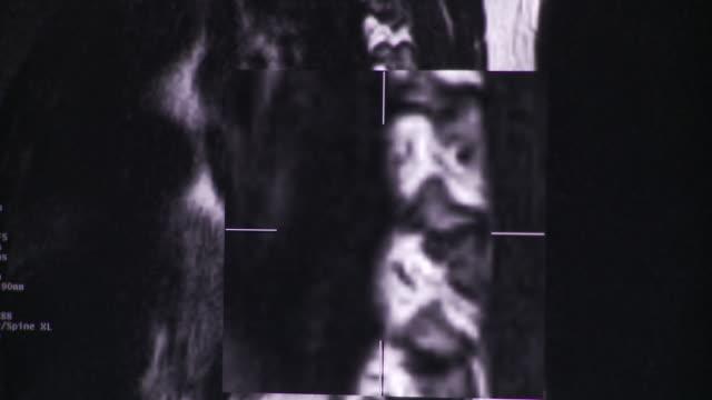 vídeos de stock, filmes e b-roll de ecu tu td several images of x-rays and ct scans on computer screen / south burlington, vermont, usa - ultrasonografia médica equipamento de monitoramento