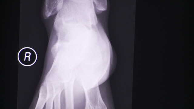 CU TU TD Several x-ray images of ankle at different angles on computer screen / South Burlington, Vermont, USA