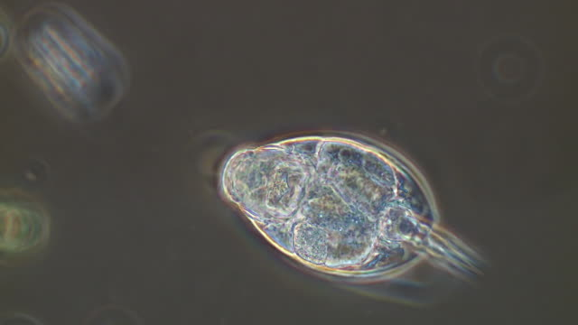 vidéos et rushes de ecu ts shot of phase contrast videomicrography of rotifer lepadella ovalis (muller, 1786), these rotifers feed on bacteria and other micro organisms and length approximately 150 micrometers / newcastle emlyn, ceredigion, united kingdom - micro organisme