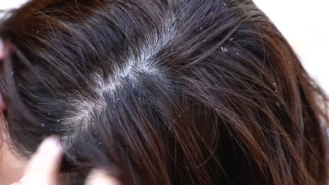 2 shots of woman with dandruff - shampoo stock videos & royalty-free footage