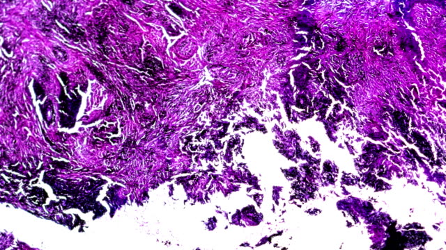 silicosis lung with black deposit human pathology biosample under microscopy - respiratory system stock videos & royalty-free footage