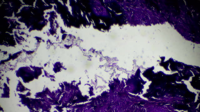 silicosis lung with black deposit human pathology biosample under microscopy - stain test stock videos & royalty-free footage