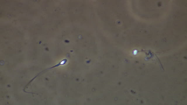 single human sperm swimming, best, phase contrast - flagello video stock e b–roll