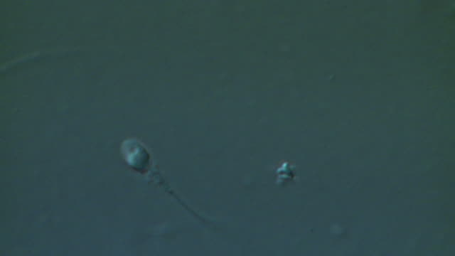 single human sperm swimming, big close up, interference contrast - flagello video stock e b–roll