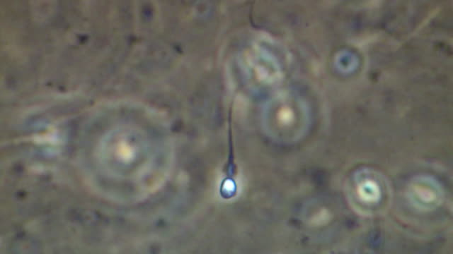 single human sperm swimming, close up, phase contrast - sperm stock videos & royalty-free footage