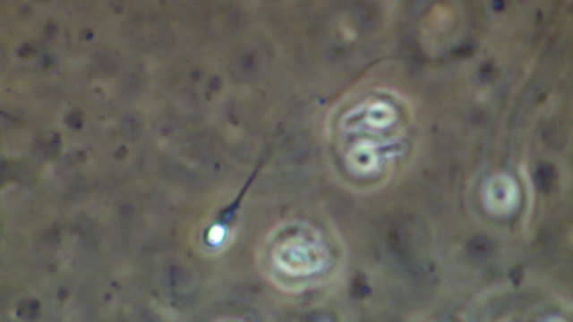 single human sperm swimming, close up, phase contrast - flagello video stock e b–roll