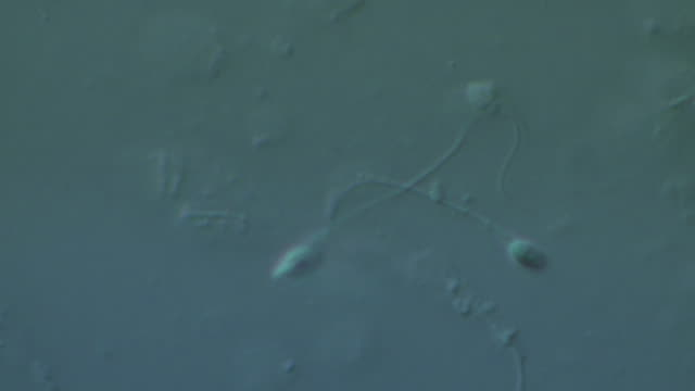single human sperm swimming, interference contrast - cell flagellum stock videos and b-roll footage