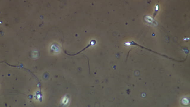 single human sperm swimming, phase contrast - flagello video stock e b–roll