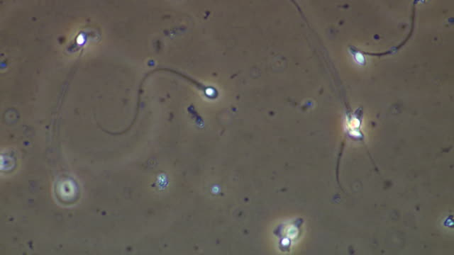 single human sperm swimming, phase contrast - high scale magnification stock videos & royalty-free footage