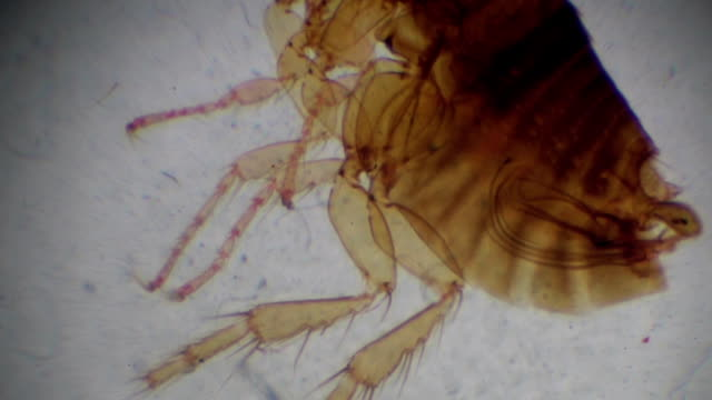 siphonaptera flea under light microscopy - microbiology stock videos & royalty-free footage