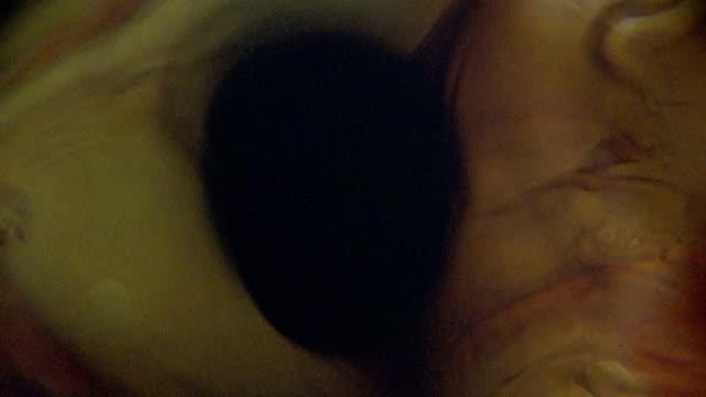 vídeos y material grabado en eventos de stock de siphonaptera pulgas bajo microscopia ligera - micrografía de luz