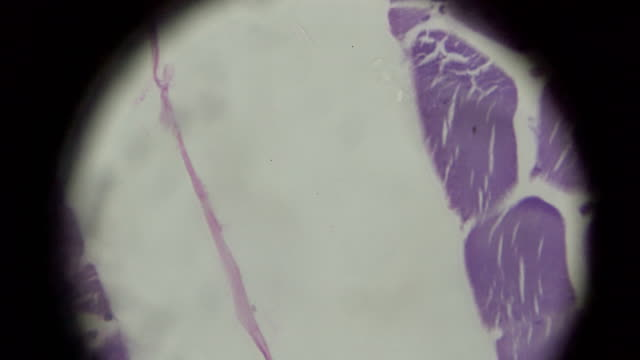 skeletal muscle cross section in microscopy - cerebral fissure stock videos & royalty-free footage