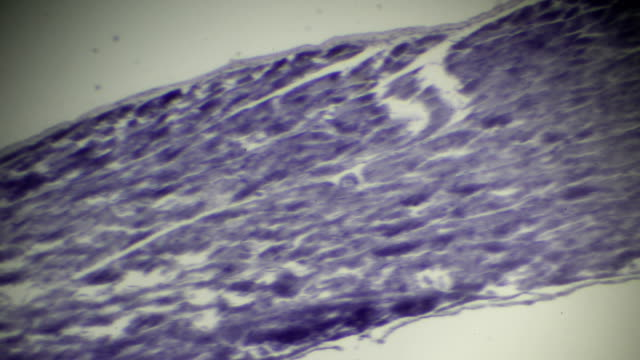 skeletal muscle lateral cut section in microscopy - cerebral fissure stock videos & royalty-free footage