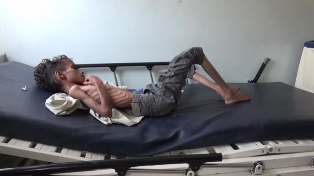 skin and bones 10 year old ghazi saleh lies on a hospital bed in the southwestern yemeni city of taez barely breathing - yemen bildbanksvideor och videomaterial från bakom kulisserna